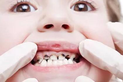 【补牙】8岁孩子牙被驻了好多,求推荐儿童补牙的好医院!