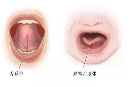 三岁宝宝吐词不清,舌头不会上翘,是舌系带过短?要剪一刀么?