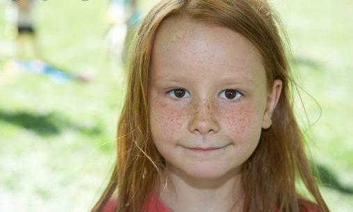 4岁女宝脸上长斑,越来越明显,求推荐祛斑方法或医生!