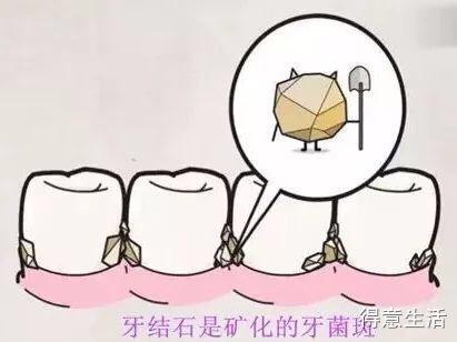 洗牙危害很大?!洗牙屆的五大謠言,第一條信的人最多!