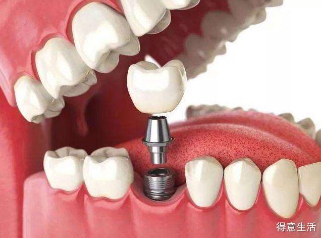 想种植牙小伙伴看过来!一文让你了解什么是种植牙?