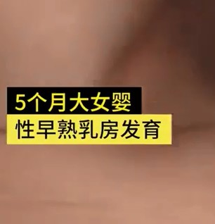 5个月女婴性早熟致乳房发育,家长怀疑奶粉是祸首!
