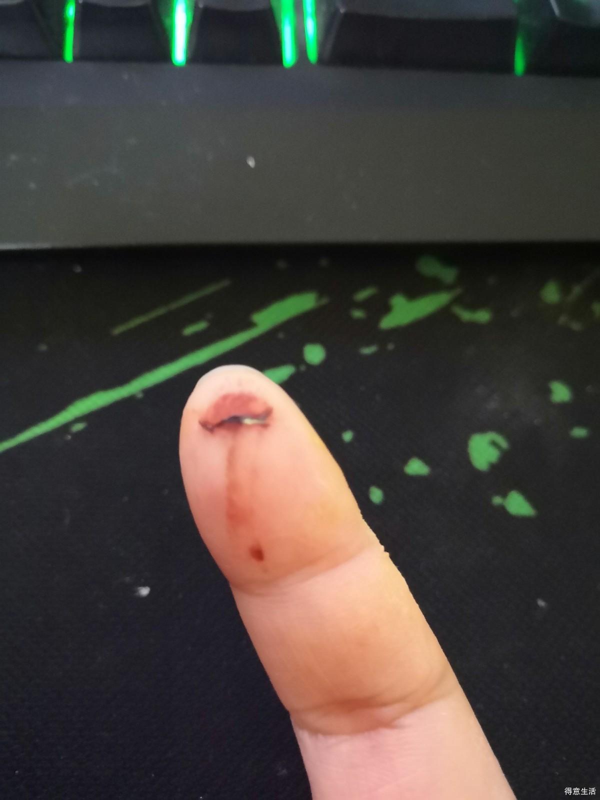 警惕!k11洗手间的门回弹力度太大,手指被夹掉一小块肉!