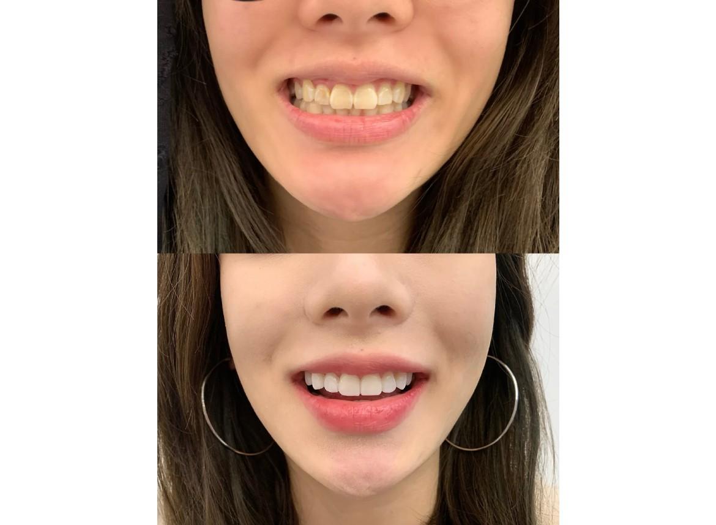 2020变美秘籍,大白牙实图奉上,我信了牙齿是提升颜值的捷径!