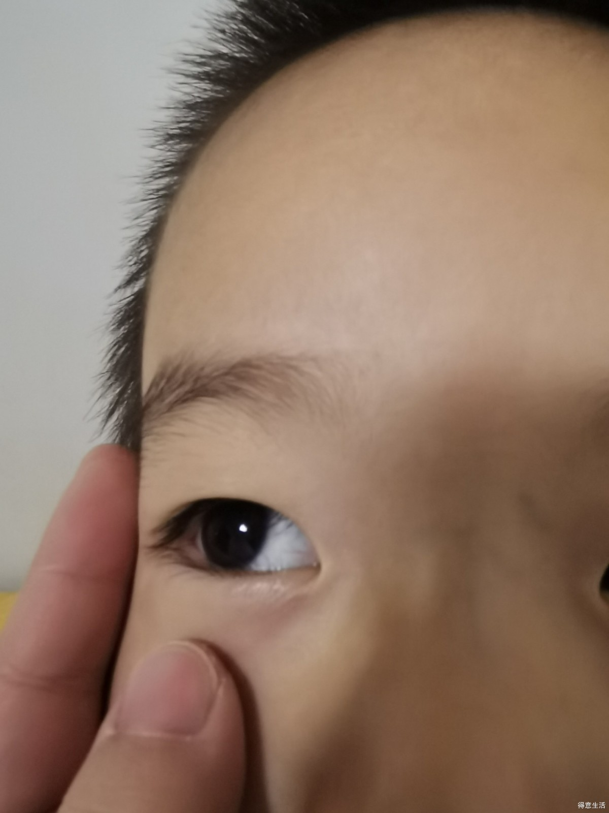 孩子要做倒睫手术,选择哪个医院好,另外有好的医生推荐么?