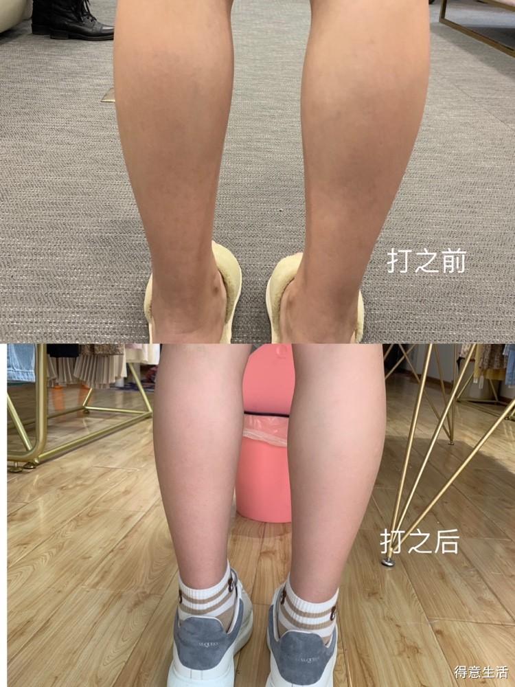 肌肉腿的福星,瘦腿针经历分享!