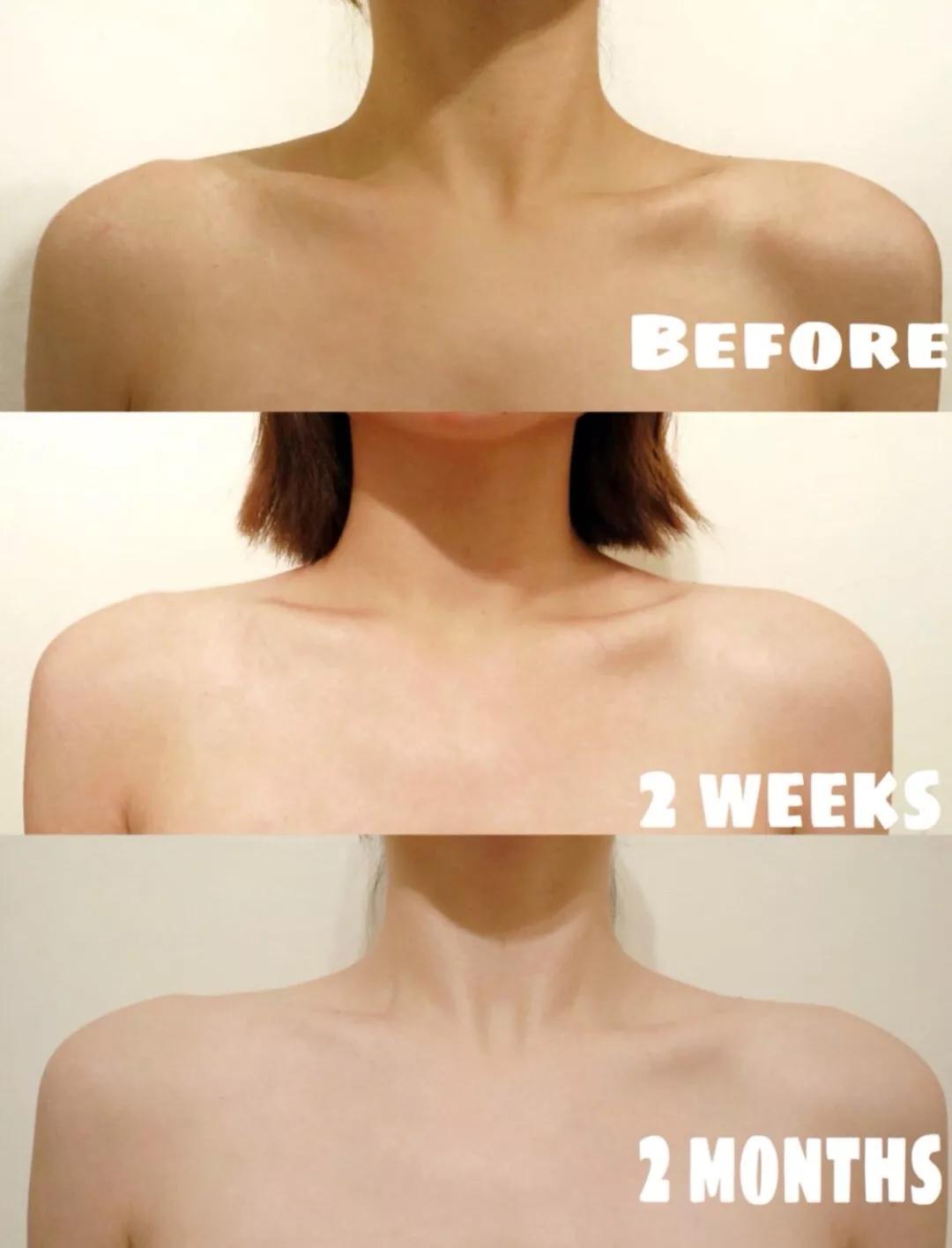 每天坚持涂身体乳,我的皮肤变化竟然这么大!自己都没有想到...
